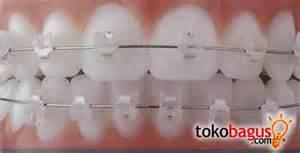 kawat gigi/behel